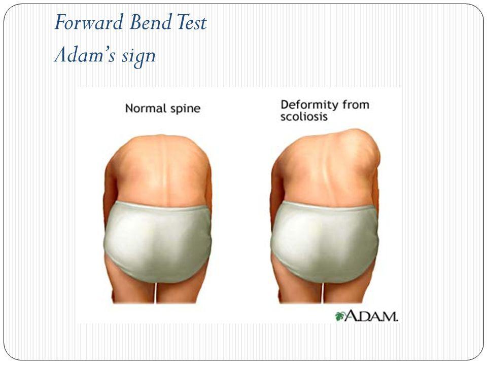 test adam untuk pemeriksaan skoliosis