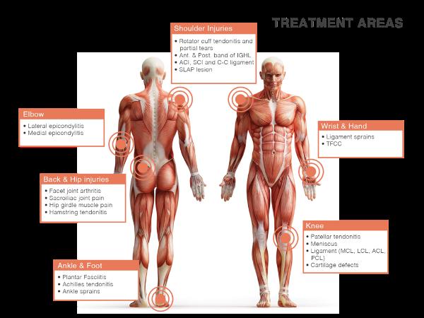 Area terapi regerantif otot, tulang sendi