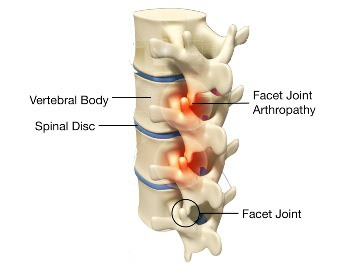 Kerusakan Sendi Facet pada Osteoarthritis 2