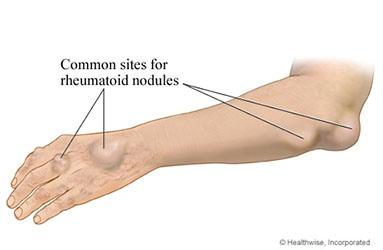 benjolan pada Rheumatoid Artritis