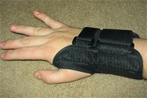 Penggunaan brace pada Carpal Tunnel Syndrome