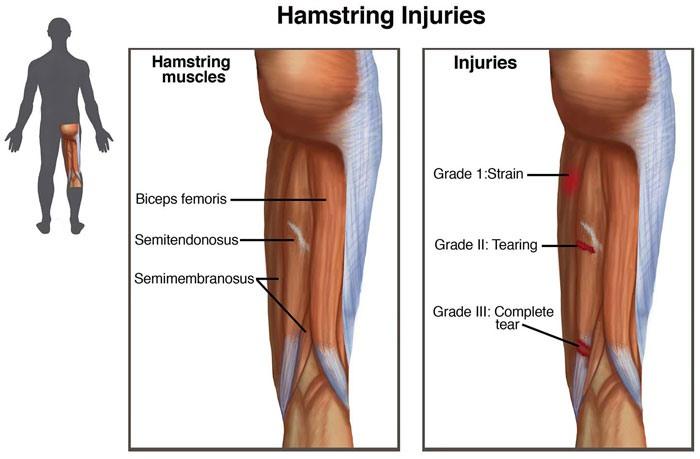 cedera hamstring