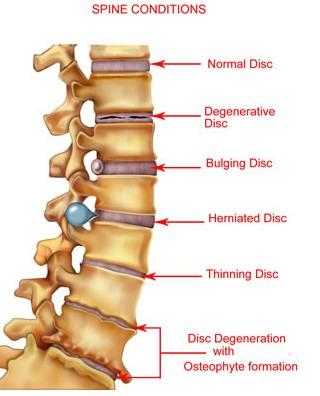 kelainan vertebra penyebab nyeri punggung