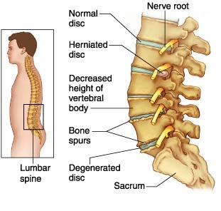 faktor resiko low back pain  nyeri pnggung bawah