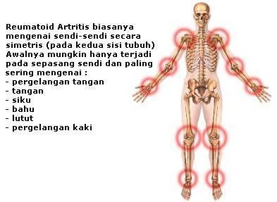 gejala Rheumatoid Artritis