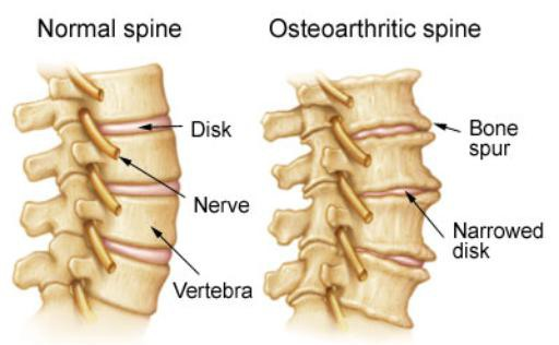 gejala osteoarthritis