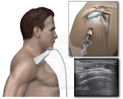 Injeksi pelumas sendi dengan USG