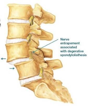 gejala jepitan saraf spinal pada spondylolisthesis