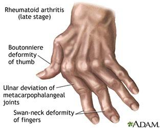 Kelainan bentuk dan gangguan fungsi sendi yang terjadi pada Rheumatoid Artritis