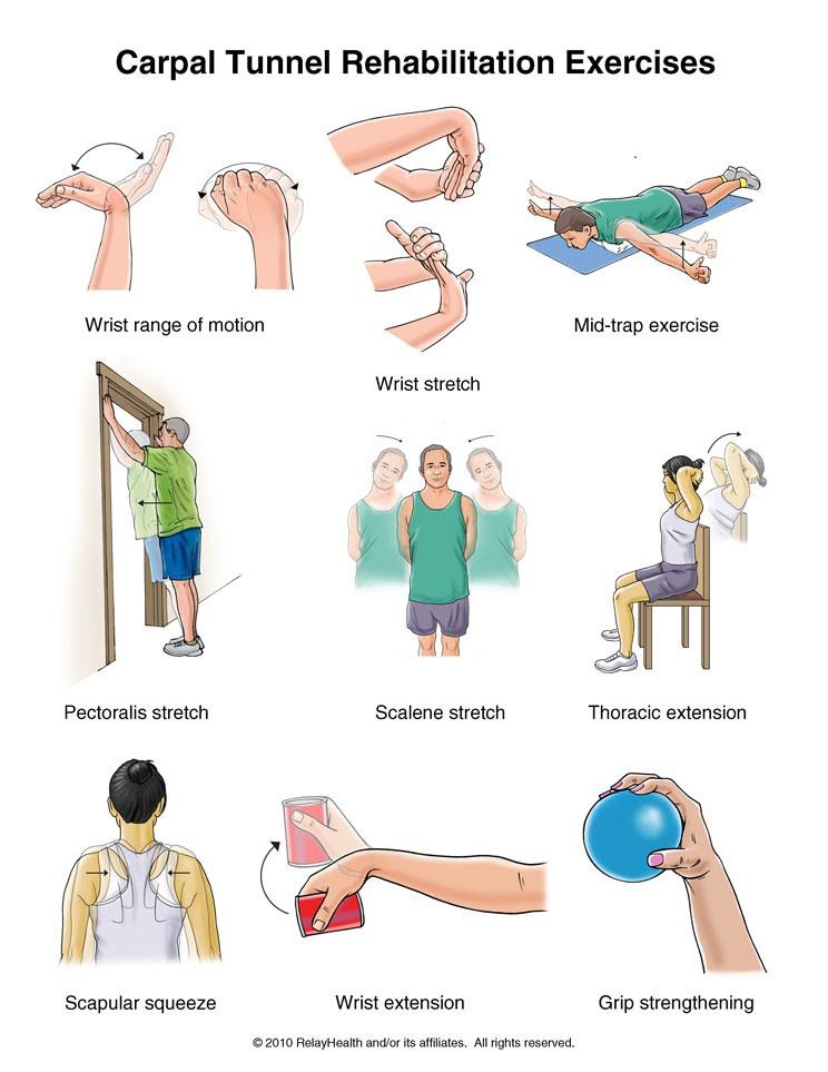 Latihan fisik untuk Carpal Tunnel syndrome