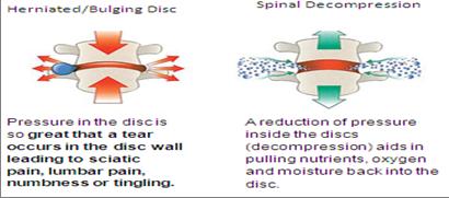 Manfaat terapi dekompresi spinal