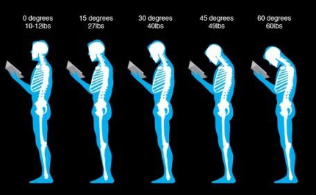 postur salah penyebab nyeri leher