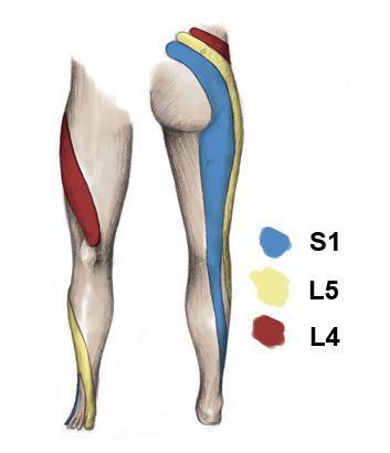 pola nyeri radikular pada kelainan vertebra lumbal dan sakral