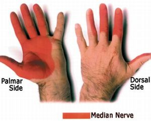 Nyeri baal carpal tunnel syndrome