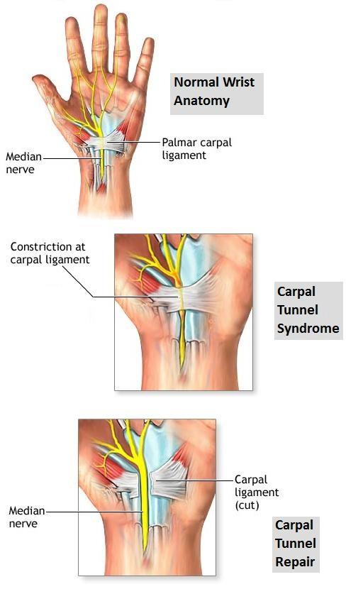 Pembebasan saraf pada pengobatan Carpal tunnel syndrome