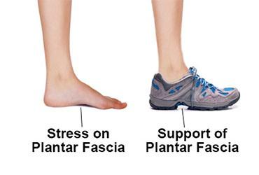 penggunaan sepatu untuk plantar fasciitis