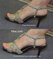 penyebab plantar fasciitis karena sepatu hak tinggi