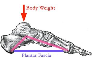 penyebab plantar fasciitis overweight