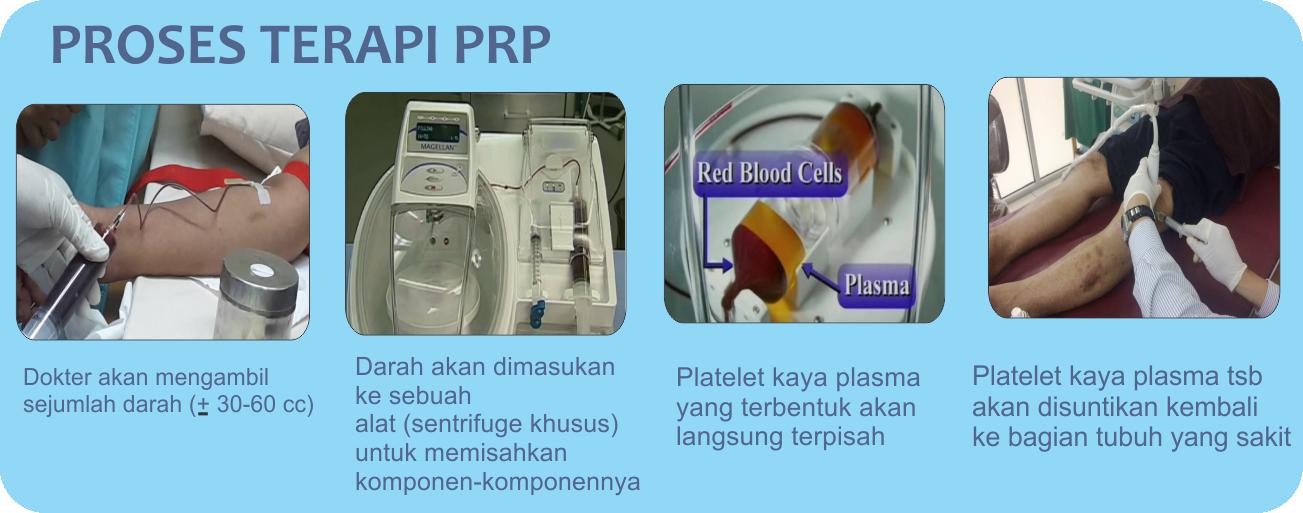 Proses terapi regenratif PRP otot, tulang, sendi