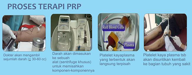 proses terapi PRP