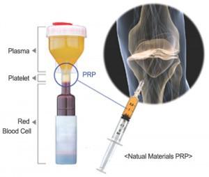Terapi PRP pada Sendi Lutut