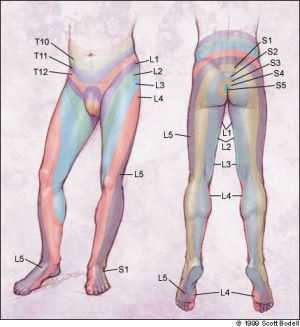 Pola nyeri radikular pada kelainan vertebra
