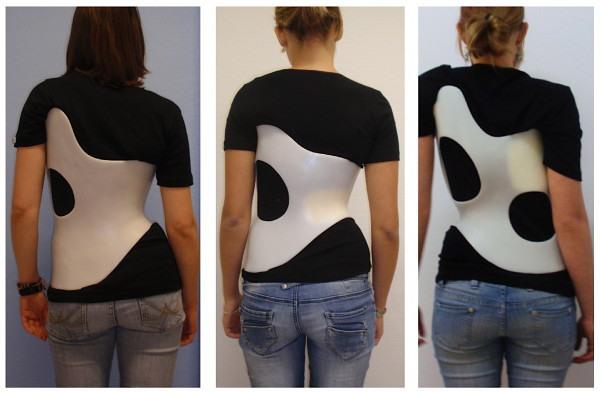 rigid scoliosis brace
