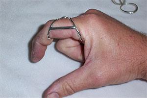 Penggunaan splint pada Trigger Finger