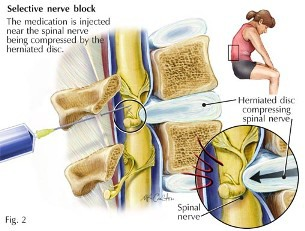 penanganan pergeseran ruas tulang belakang