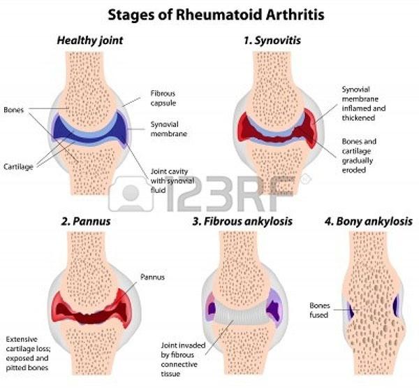 tahap kerusakan pada Rheumatoid Artritis