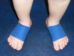 terapi kinesioa tape pada anak