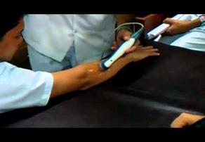 Terapi Ultrasound pada tangan