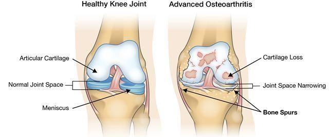 Nyeri lutut usia 50 tahun