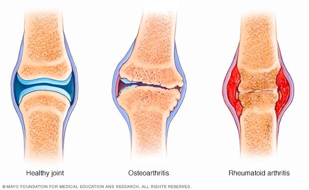 artritis lutut