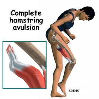 cedera avulsi hamstring
