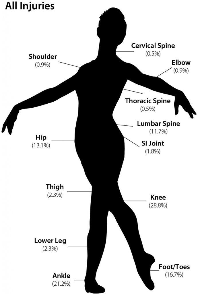 cedera pada penari