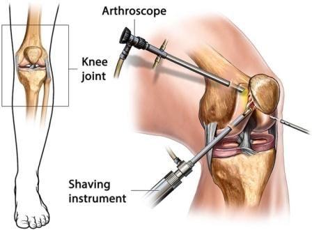 operasi lutut