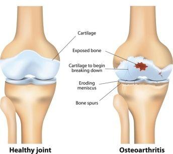 Penyebab pengapuran tulang