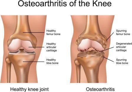 penyebab nyeri lutut pada lansia