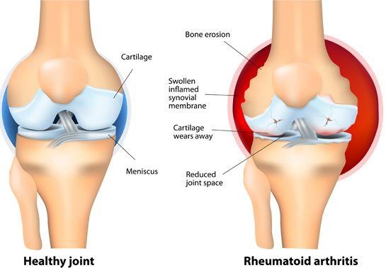 rheumatoid arthritis lutut