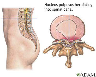 bahaya saraf kejepit