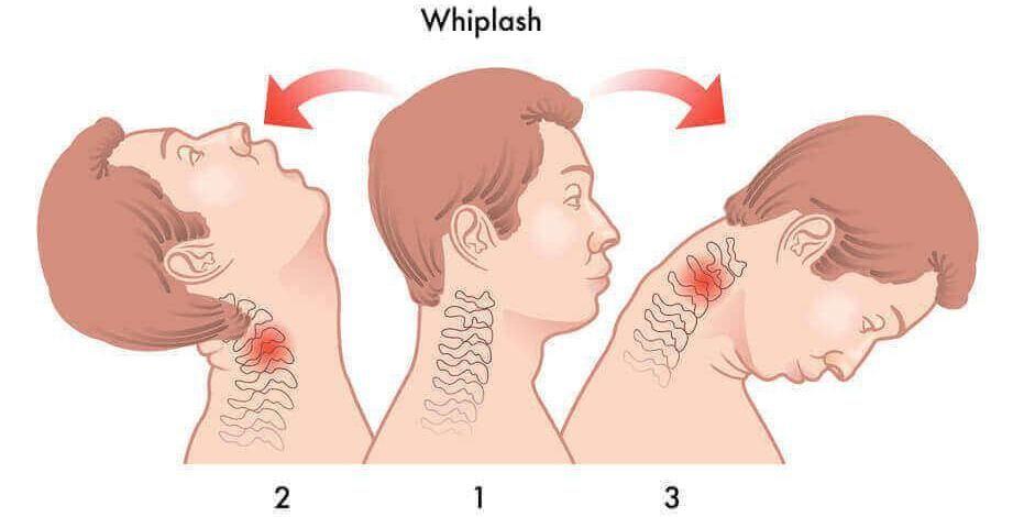 Penyebab Leher Sakit dan Kaku, Cara Pencegahannya Bagaimana?